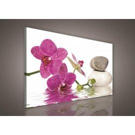 Obraz na plátne Kúpelné kamene s orchideí 100 x 75 cm